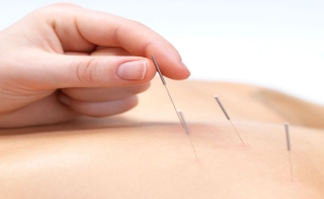 Acupuncture photo