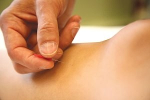 Modern acupuncture linked to constipation relief