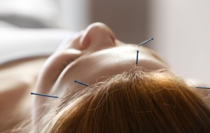 acupuncture-forehead