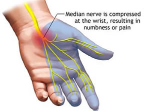 carpal-tunnel-syndrome-nerve-diagram.jpg
