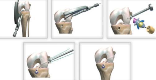 膝盖保护图片1